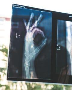 emberi kéz a röntgen felvételen